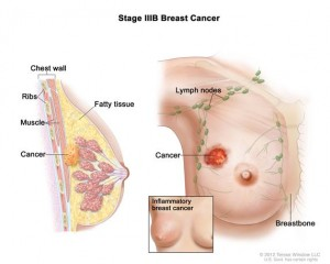 BREAST CANCER INFLAMMATORY