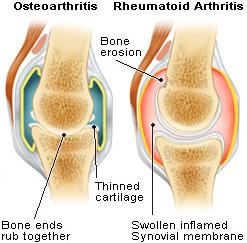 arthritis (1)