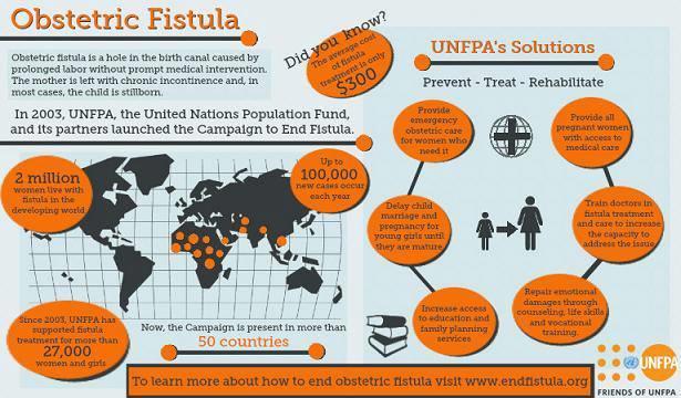 fistula may 2013